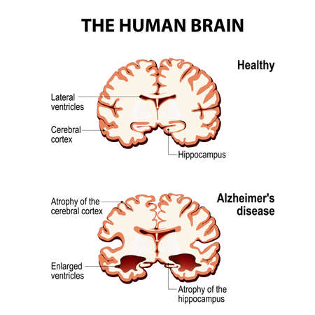The human brain. Cross section. Healthy and brain with Alzheimers disease (dementia, senility) Illustration