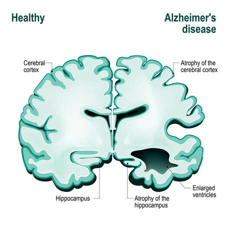 alzheimers: Cross section of the human brain. Healthy brain compared to Alzheimers disease (dementia, senility)
