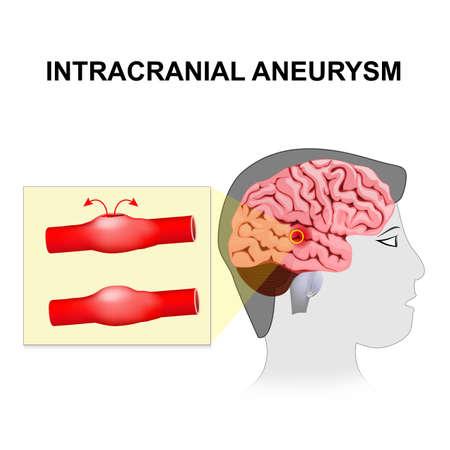 脳動脈瘤。大脳または脳動脈瘤。血腫の形成と同様、神経細胞の破壊、脳動脈の破裂。