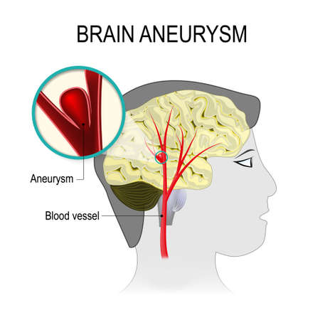 Blood vessels in the brain with aneurysm on the background of the silhouette head man. rupture blood vessel into the cerebral hemisphere causing a stroke. Human anatomy. Medical illustration Illustration