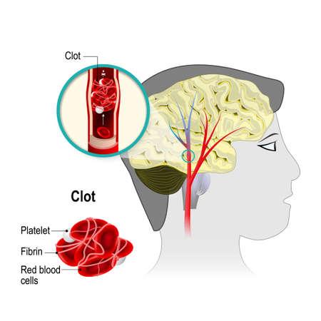 Hirninfarkt. Schlaganfall. Das Hindernis wird durch ein Blutgerinnsel verursacht werden, die in einer zerebralen Arterie bildet. Blutzellen der Blutströmung blockiert. Menschliche Anatomie.