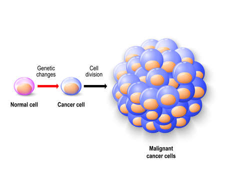 Normal human cell reborn to cancer cells, and growing to malignant tumor. Human anatomy