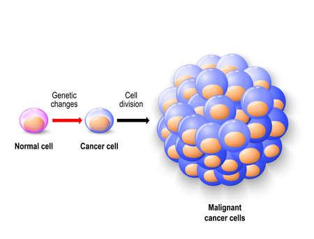 Normale menselijke cel herboren tegen kankercellen en groeiend tot kwaadaardige tumor. Menselijke anatomie Stock Illustratie