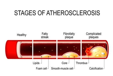 죽상 동맥 경화증의 단계. 자세한 그림입니다. 건강한 동맥 및 건강에 해로운 동맥. 지방 줄무늬에서 석회화 및 혈전증에 이르는 플라크 개발. 심혈관 질환. 인체 해부학