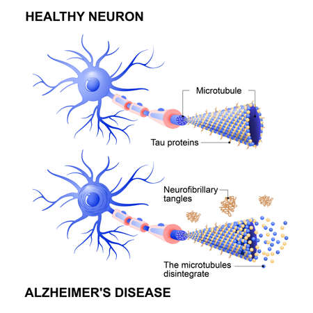 Alzheimer's disease is the change in tau protein that results in the breakdown of microtubules in brain cells. Mechanism of disease. Diagram shows two neurons: healthy cell and neuron with Alzheimer's disease. Tau hypothesis. Neurofibrillary tangles Vectores