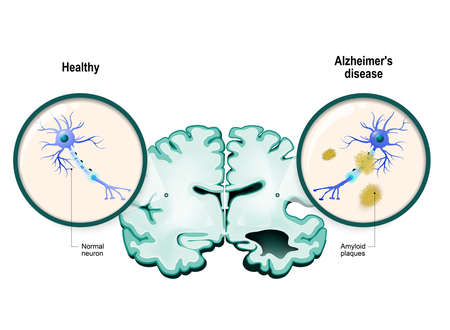 human brain, in two halves: healthy and Alzheimers disease. Healthy neuron and neuron with amyloid plaques. in comparison