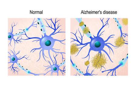 Neuronen in de gezonde hersenen en de ziekte van Alzheimer met amyloïde plaques. in vergelijking. Medische achtergrond