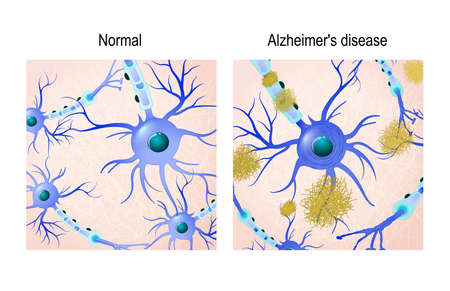 Neurons in the healthy brain and Alzheimers disease with amyloid plaques. in comparison. Medical background
