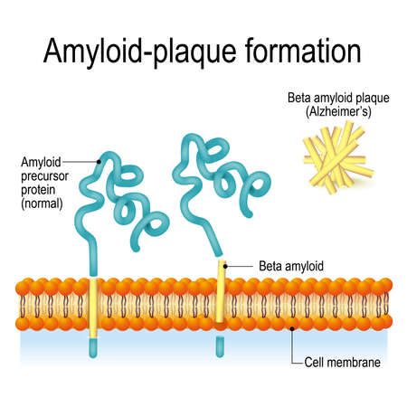 Cell membrane with Amyloid precursor protein (APP) and beta amyloid. Amyloid-plaque formation. Alzheimers disease Illustration