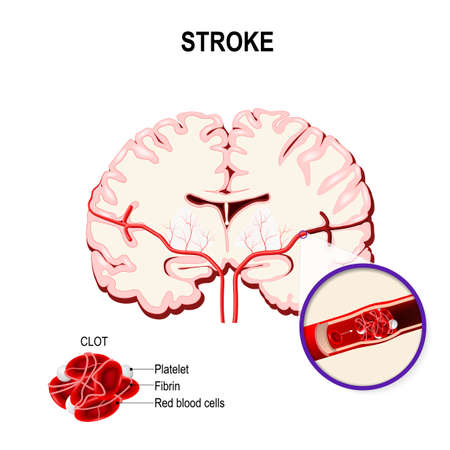 Blood clot in the human brain. Ischemic stroke in the cerebral artery and thrombus. Illustration