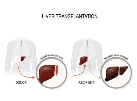 Die Lebertransplantation oder Lebertransplantation. Ersatz eines erkrankten Leber (Empfänger) auf eine gesunde Leber vom Spender. Vektorgrafik