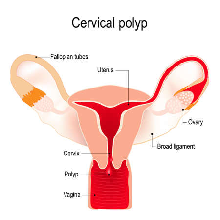 A cervical polyp is a tumour on the surface of the cervical canal. uterus Illustration
