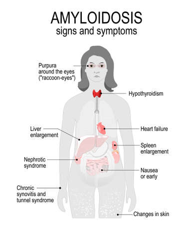 hypothyroidism: Amyloidosis is a disease by accumulation of proteins (amyloid fibrils). Signs and symptoms. woman silhouette with highlighted internal organs.