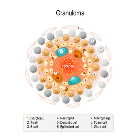 lepra: Estructura celular del granuloma tuberculoso. Anatomía humana. Enfermedades inflamatorias Vectores