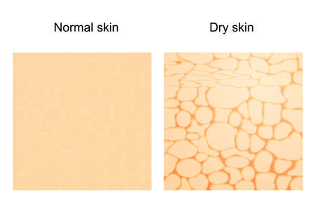 The difference between dry skin and normal skin. Vector background. skincare.