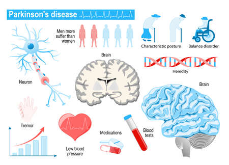Parkinsons disease. Elderly people. diseases, disorders and other health problems. Medical Infographic set with icons and other elements. symbols for design.