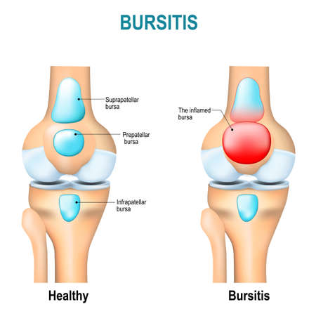 bursa: Bursitis. Healthy humans knee and knee with inflammation of bursae (synovial fluid). Illustration