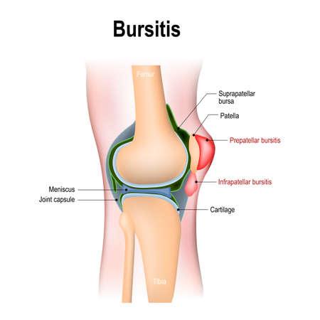 Bursitis. inflammation of bursae (synovial fluid). Prepatellar bursitis (housemaids knee) and Infrapatellar bursitis