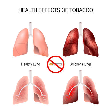 health effects of smoking healthy lungs and smokers lungs no