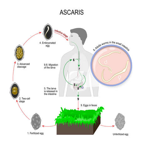 Ascaris lumbricoides life cycle. Silhouette of a man with internal organs. The arrows indicate the direction of worm migration in the human body and environment. Eggs, larva and adult specimens of ascarids Stock Illustratie