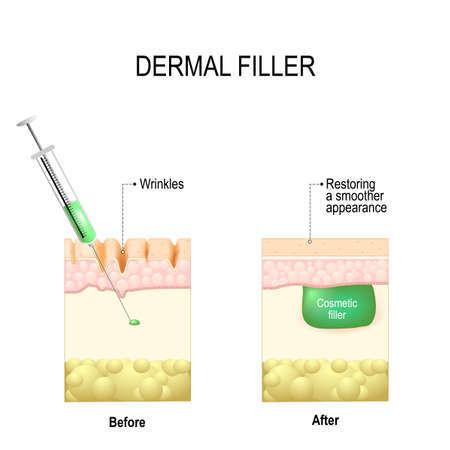 injectable cosmetic filler or Dermal fillers