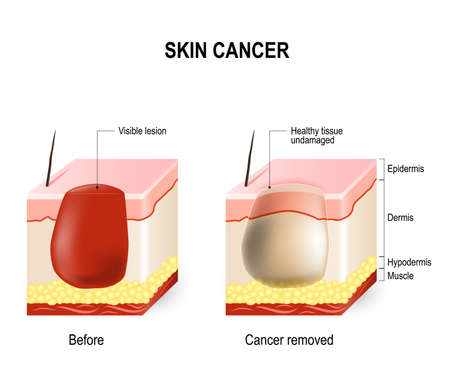 surgical removal: Skin Cancer Treatment. surgically removes. skin section with melanoma (before surgery) and skin is free of cancer (after cure).