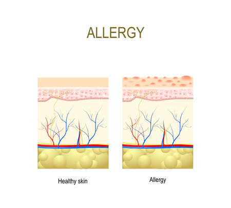histamine: Allergy. healthy and skin with allergic reaction. cross-section of the human skin