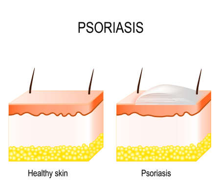 Normal skin and psoriasis. plaque psoriasis