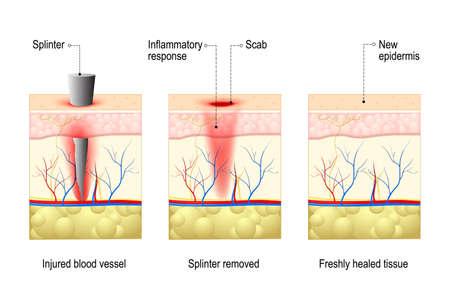 Huid met splinter en wondgenezing. proces in het lichaam weefsel reparaties na trauma. dwarsdoorsnede van de menselijke huid