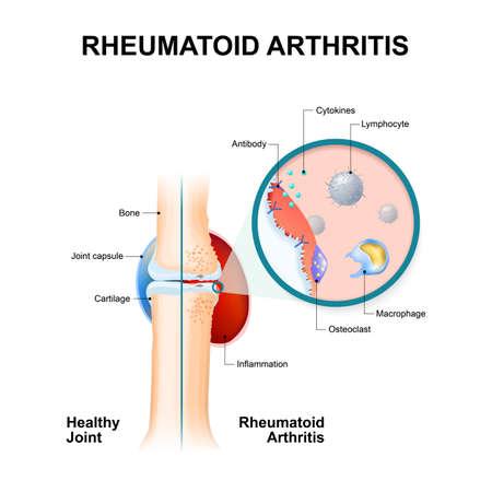 정상 관절과 류마티스 관절염이있는 관절. 류마티스 관절염 (RA)은 일반적으로 무릎에 영향을주는 염증성 관절염입니다. 자동 면역 질환. 신체 일러스트