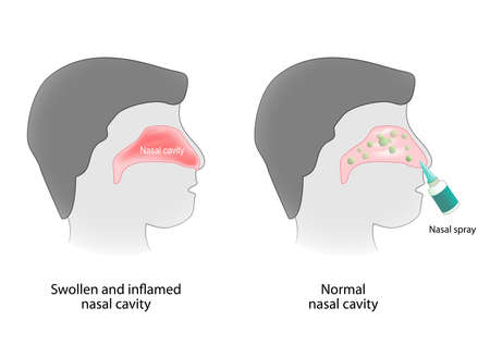 mucosa: Inflammation of the nasal cavity and nasal cavity healthy. Nasal spray. Human anatomy