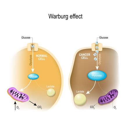 glycolysis. Warburg 효과. 정상 세포 및 암 세포에서의 대사. 종양 세포는보다 높은 수준의 분해 및 젖산 생산을한다.