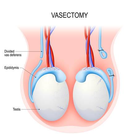 Vasectomía. Procedimiento quirúrgico para la esterilización masculina. Método abierto y ligadura (sutura). Anatomía reproductiva del varón después de la vasectomía. Testículos Diagrama vectorial