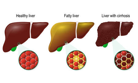 Liver disease. Healthy, fatty and cirrhosis of the liver. liver cells (hepatocyte).  Illustration