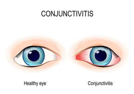 결막염. 건강한 눈과 분홍색 눈 (염증과 함께).