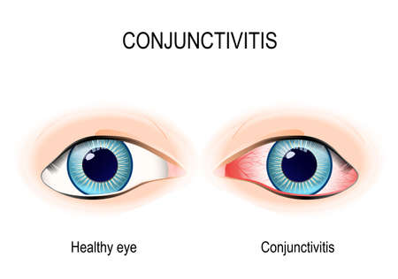 itchy: Conjunctivitis. Healthy eye and pink eye (with inflammation).
