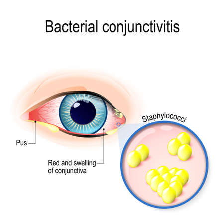 Bacterial conjunctivitis. Eye with conjunctivitis and bacteria that cause it. Staphylococci