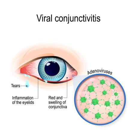 바이러스 성 결막염. 아데노 바이러스는 바이러스 성 결막염의 원인이다.