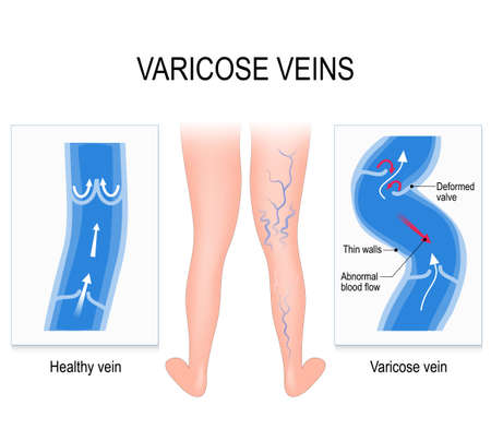 ulceration: Varicose veins and Normal vein. Medical illustration Illustration