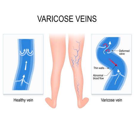 Venas varicosas y vena normal. Ilustración médica