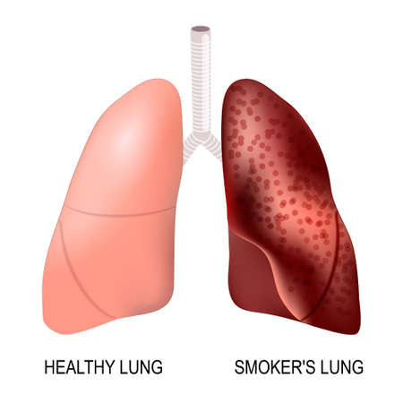 lobe: healthy lungs and smokers lungs