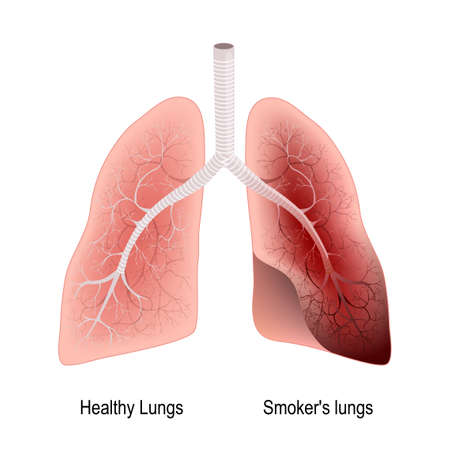 Diagram of smoker s lungs wiring diagram database smoker s lung and healthy lung before and after a lifetime of rh 123rf com smokers lung respiratory system lung cancer diagram ccuart Images