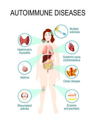maladies auto-immunes. Tissus du corps humain affectés par une attaque auto-immune. Maladie et organes sur silhouette femme. Illustration anatomique Vecteurs