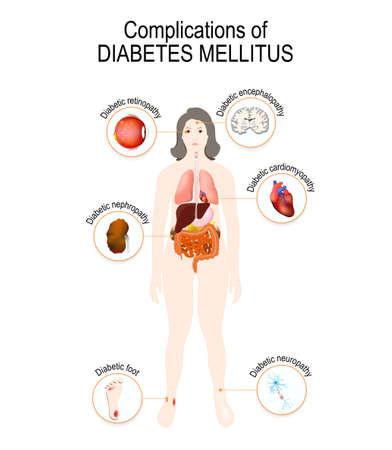 Complications of diabetes mellitus: nephropathy, Diabetic foot, neuropathy, retinopathy, encephalopathy, cardiomyopathy. Affected organs. silhouette of Woman with internal organs