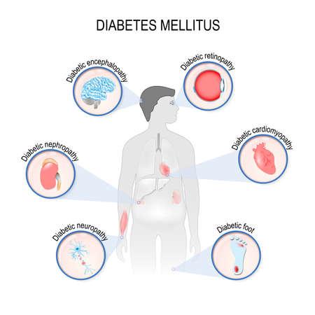 Complications of diabetes mellitus: nephropathy, Diabetic foot, neuropathy, retinopathy, encephalopathy, cardiomyopathy. Affected organs. silhouette of man with internal organs Illustration