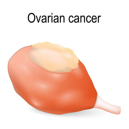 Ovarian cancer is a tumor that occurs in the ovary.