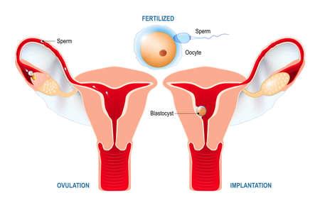 배란에서 수정까지. 인간 배아의 개발 : 배란, 수정, 자궁 벽에 배반포를 이식. 여성 생식 기관의 해부학. 자궁 흰색 배경에 넓은 인대와 함께.
