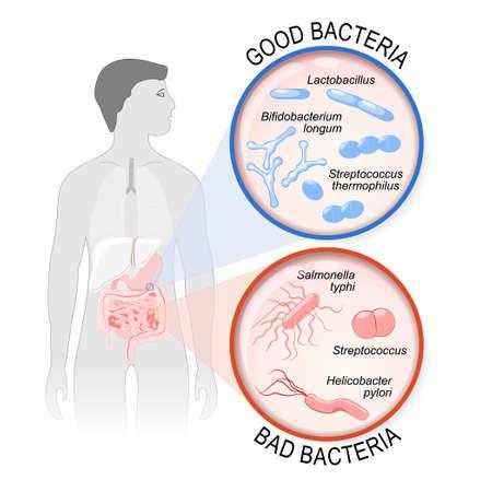 Probióticos. Flora intestinal: Buena (Lactobacillus, Bifidobacterium longum, Streptococcus thermophilus) y Bad (Streptococcus, Salmonella typhi, Helicobacter pylori).