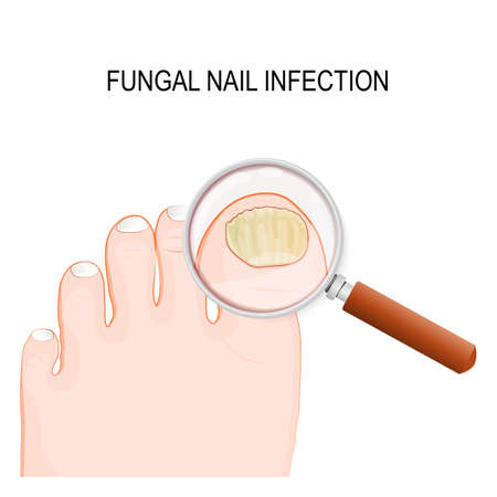 fungal nail infection. Onychomycosis or tinea unguium is a fungal infection of the nail Ilustracja