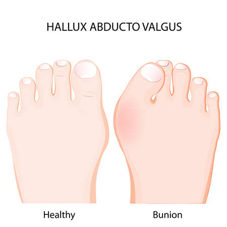 Healthy joint and bunion comparison